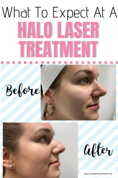 Thinking about skin resurfacing? Here's what you need to know about the Halo laser treatment (Before & After photos). #Beauty #FaceTreatment #HaloLaser #HaloFaceTreatment #SkinResurfacing